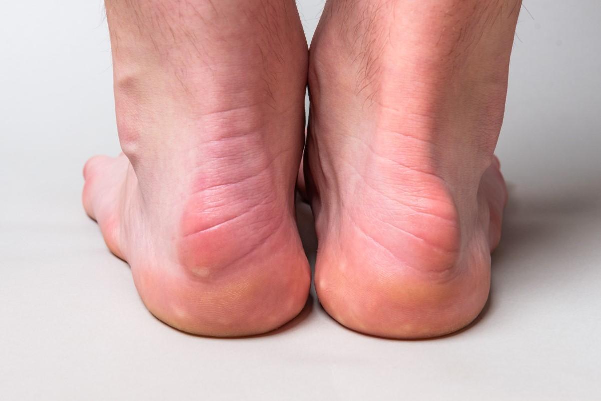 Heel & arch problems